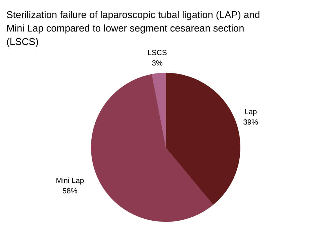 tubal ligation side effects and reversal Sterilization failure of laparoscopic tubal ligation (LAP) and Mini Lap compared to lower segment cesarean section (LSCS)